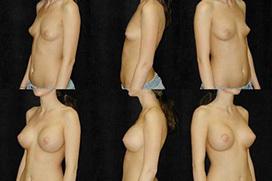 貧乳から巨乳へと変貌する豊胸手術ビフォーアフター