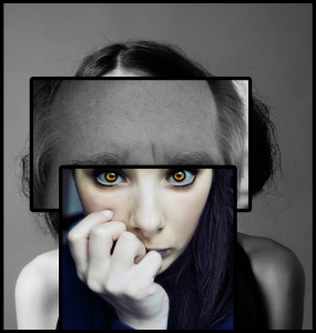 統合失調症 画像