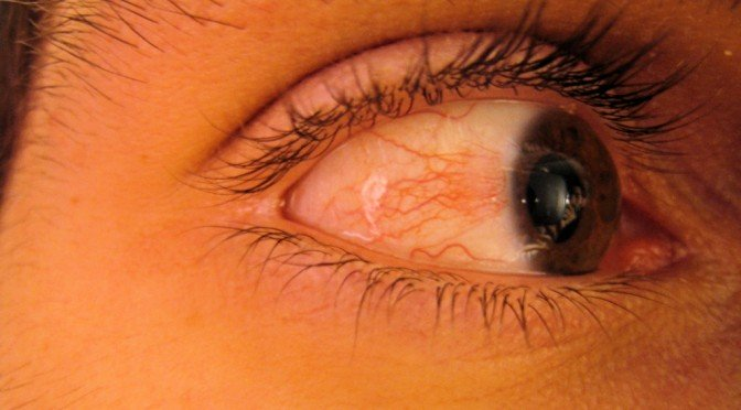 眼の充血 1
