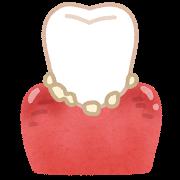 腫れた歯茎