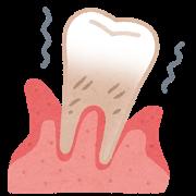 歯周病の歯茎