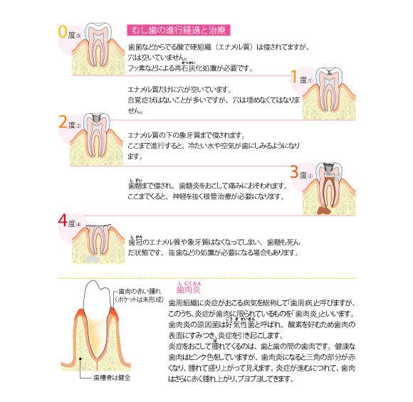 むし歯の進行経過と治療