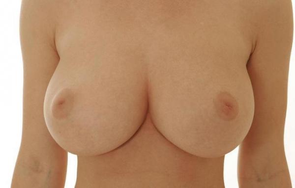 陥没乳首画像-31