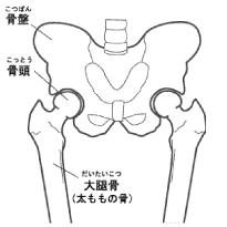 大腿骨頚部骨折 画像