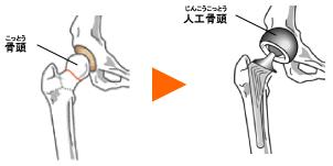 人工骨頭 画像